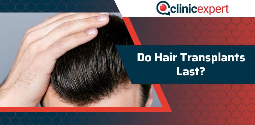 Do Hair Transplants Last?