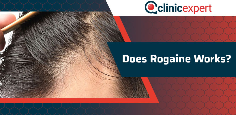 Does Rogaine Works?