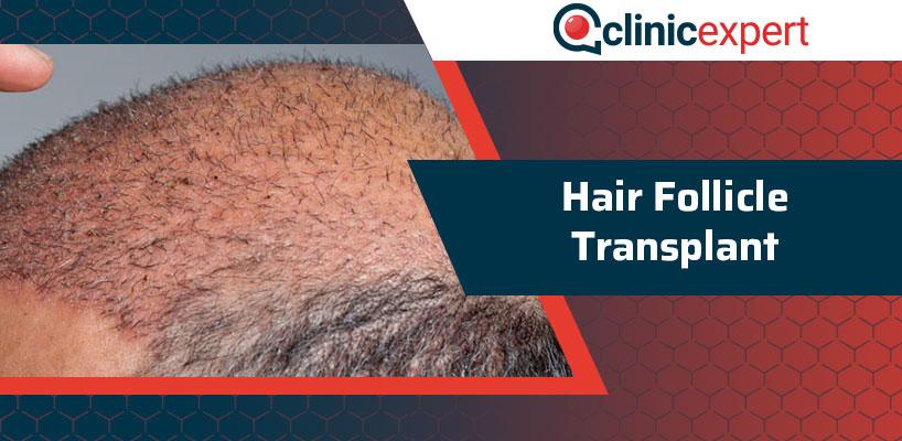 Hair Follicle Transplant