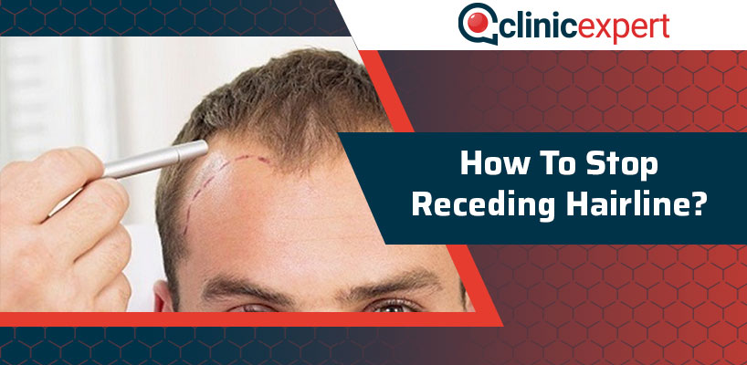 How To Stop Receding Hairline?