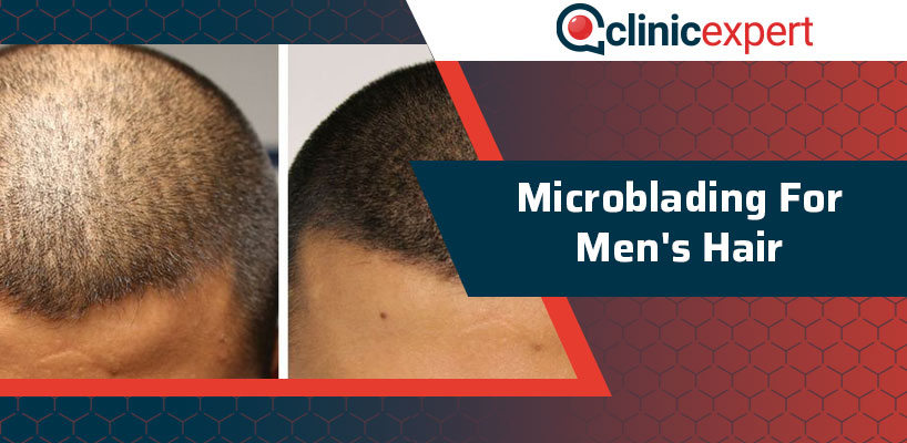 Microblading For Men's Hair