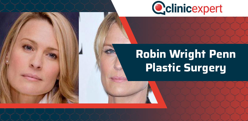 Robin Wright Penn Plastic Surgery