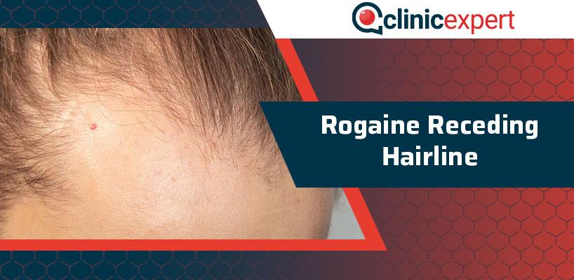 Rogaine Receding Hairline