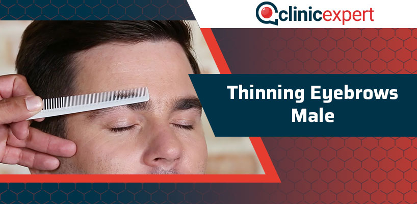 Thinning Eyebrows Male