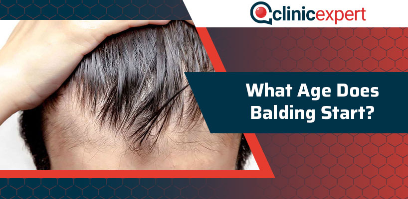 What Age Does Balding Start?