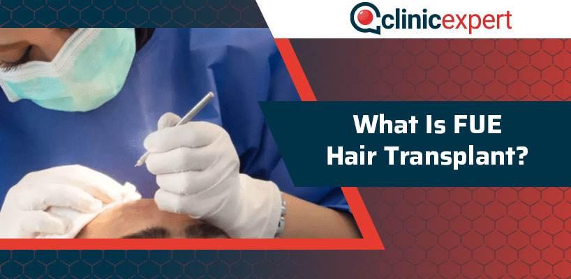 What Is FUE Hair Transplant?