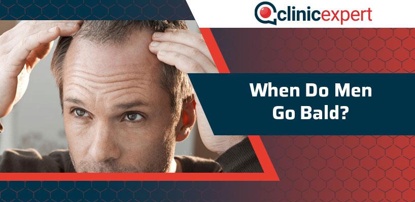 When Do Men Go Bald?