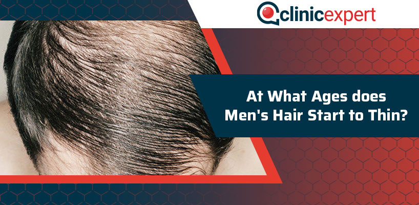 At What Ages does Men's Hair Start to Thin?