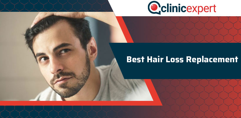 Best Hair Loss Replacement