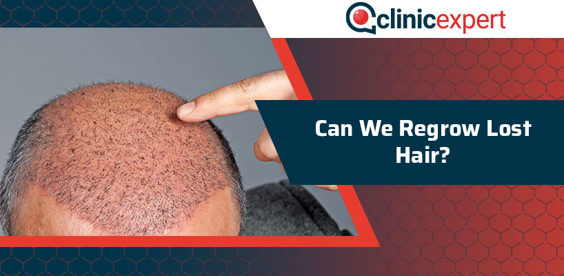 Can We Regrow Lost Hair?