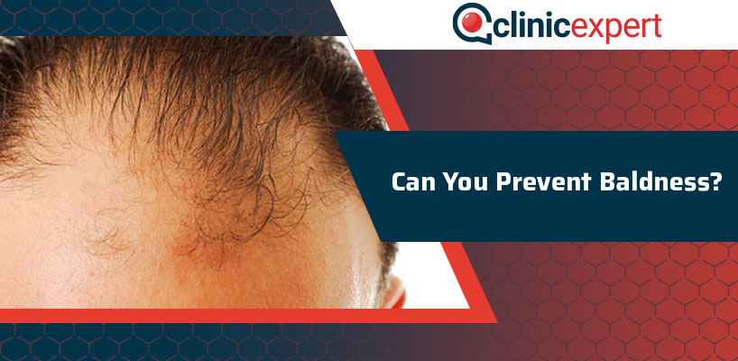 Can You Prevent Baldness From Occurring?
