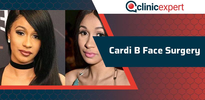 Cardi B Face Surgery