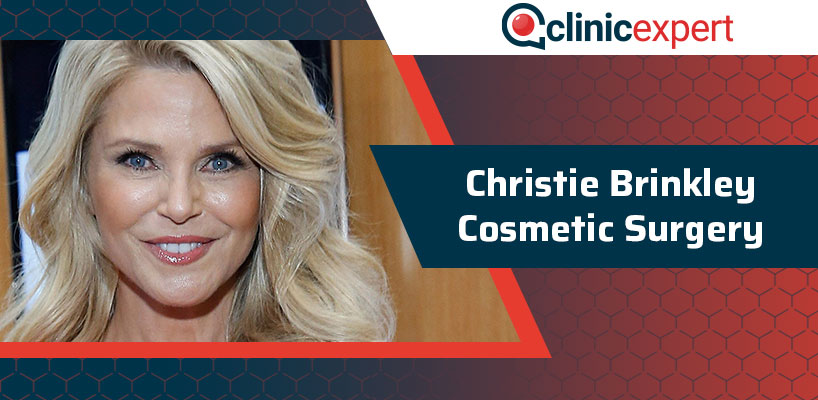 Christie Brinkley Cosmetic Surgery