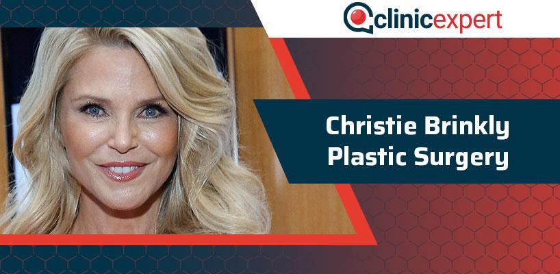 Christie Brinkly Plastic Surgery