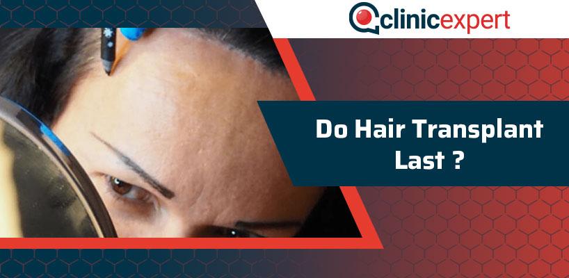 Do Hair Transplant Last?