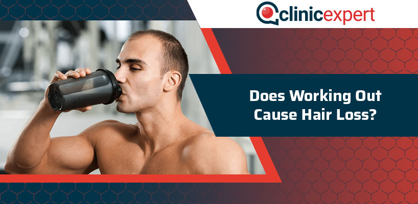 Does Working Out Cause Hair Loss?
