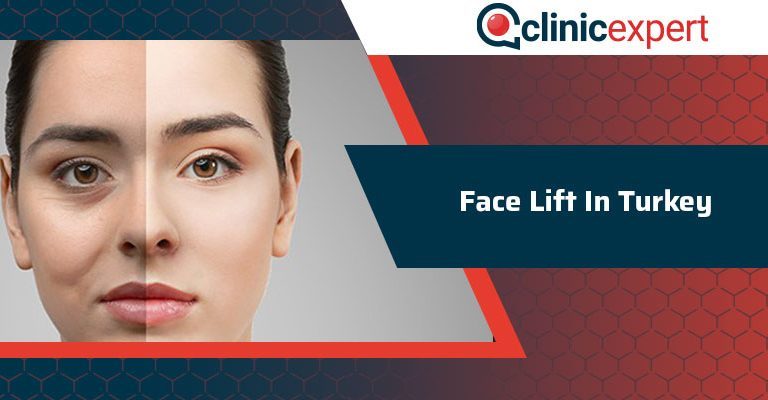 Face Lift operation In Turkey