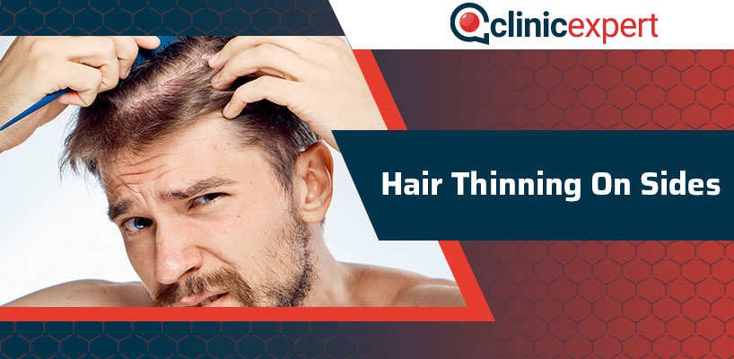 Hair Thinning On Sides