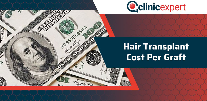 Hair Transplant Cost Per Graft