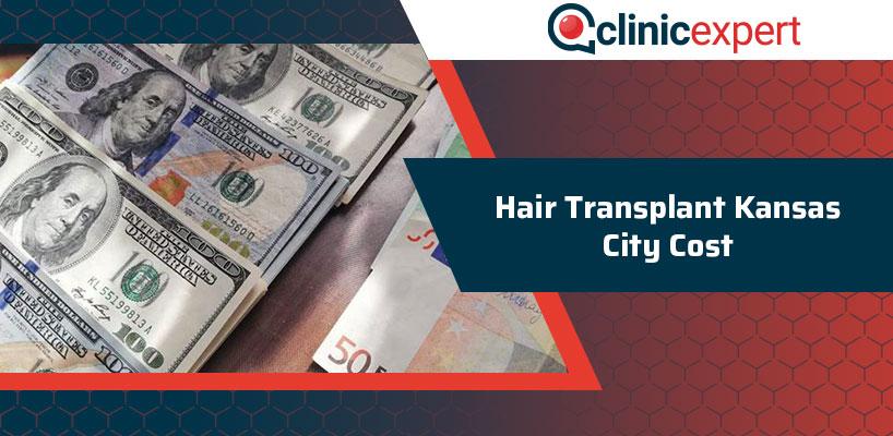 Hair Transplant Kansas City Cost