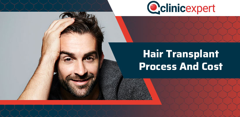 Hair Transplant Process And Cost