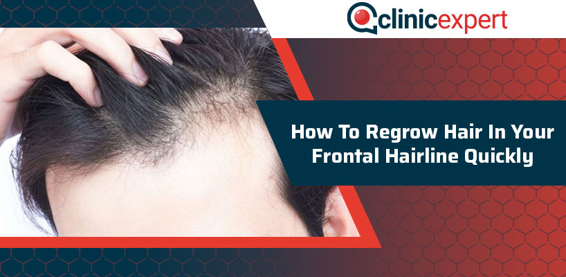 How To Regrow Hair In Your Frontal Hairline Quickly?