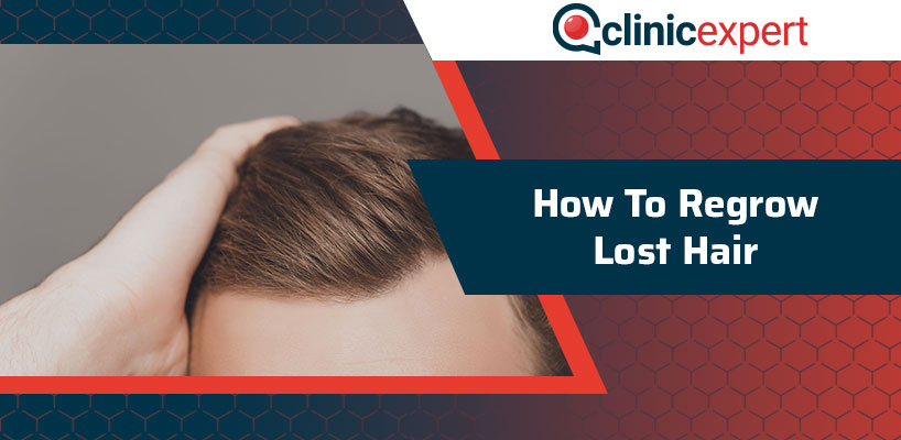 How To Regrow Lost Hair?