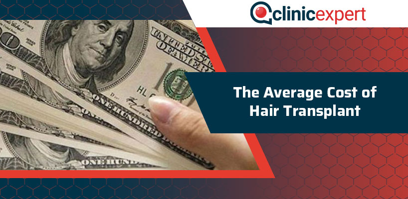 The Average Cost of Hair Transplant
