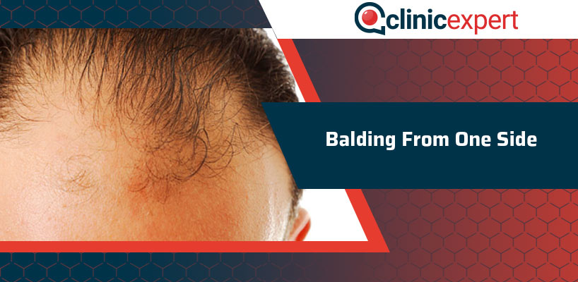 Balding From One Side