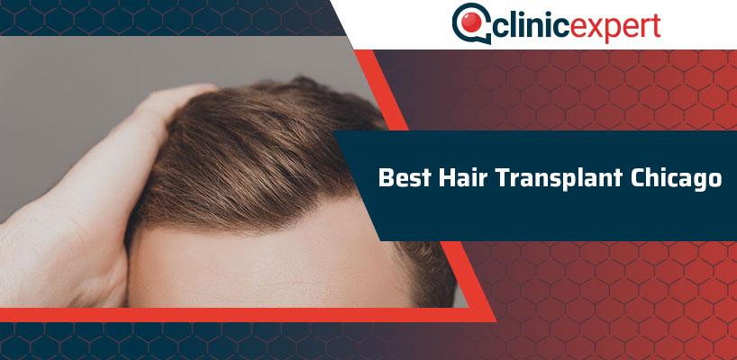 Best Hair Transplant Chicago
