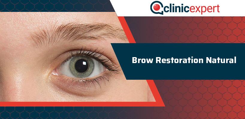 Brow Restoration Natural