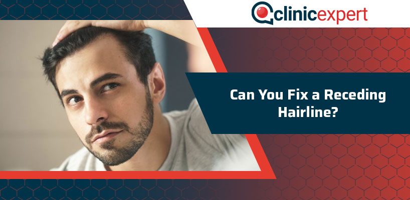 Can You Fix A Receding Hairline?