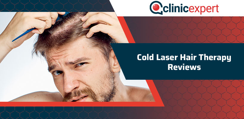 Cold Laser Hair Therapy Reviews