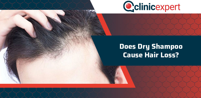 Does Dry Shampoo Cause Hair Loss?