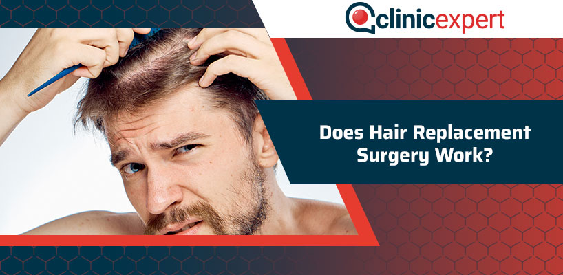 Does Hair Replacement Surgery Work?