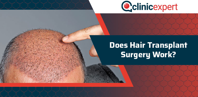 Does Hair Transplant Surgery Work?
