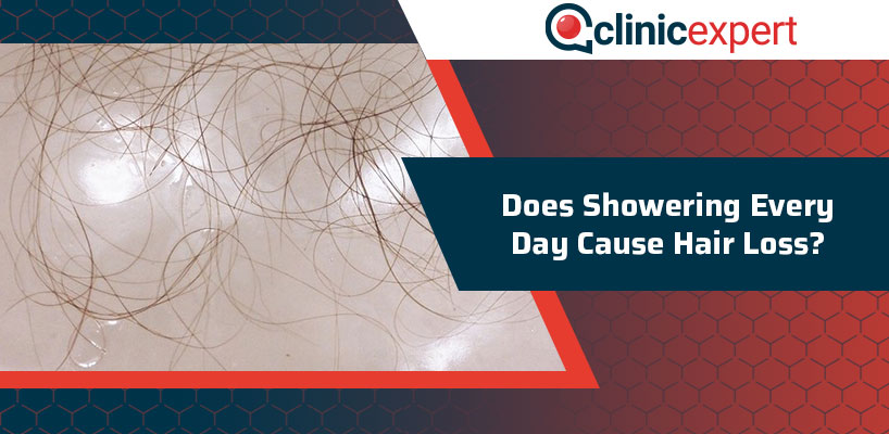 Does Showering Every Day Cause Hair Loss?