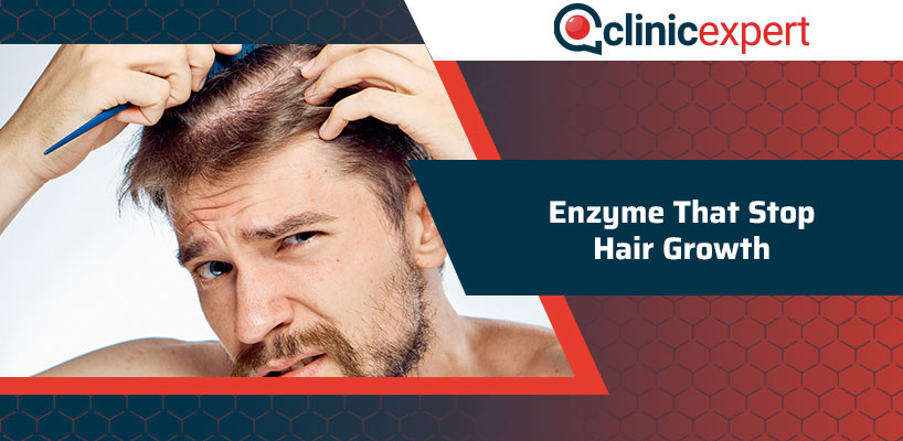 Enzyme That Stop Hair Growth