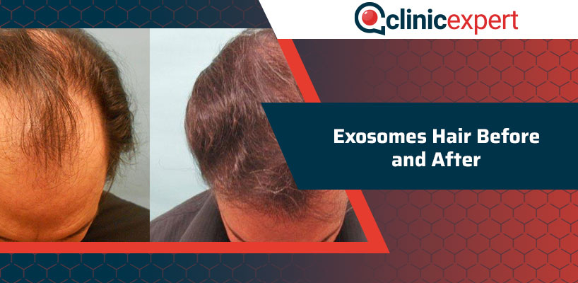 Exosomes Hair Before and After