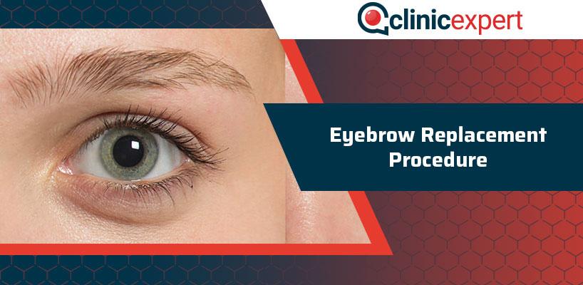 Eyebrow Replacement Procedure