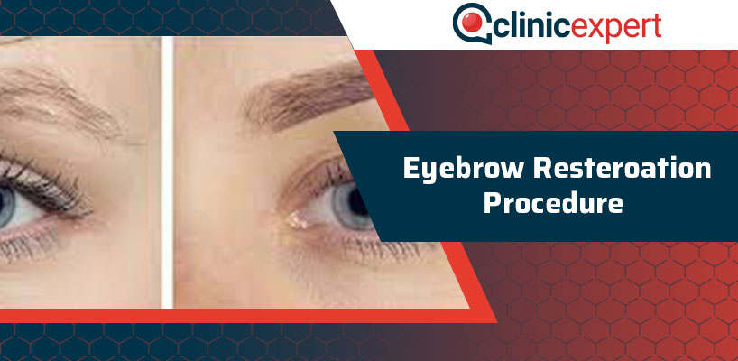 Eyebrow Restoration Procedure