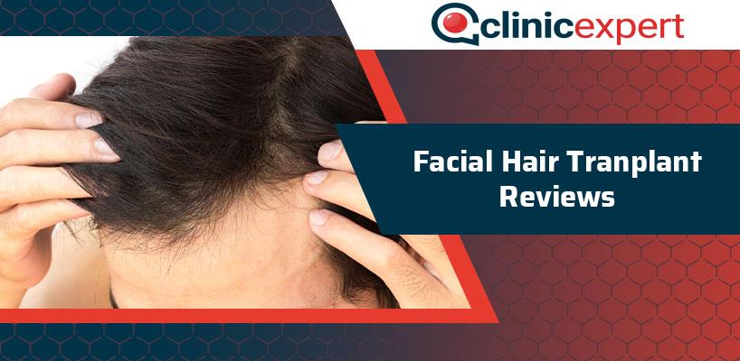 Facial Hair Transplant Reviews