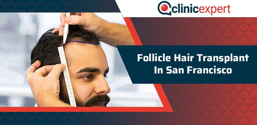 Follicle Hair Transplant In San Francisco