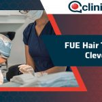 FUE Hair Transplant Cleveland