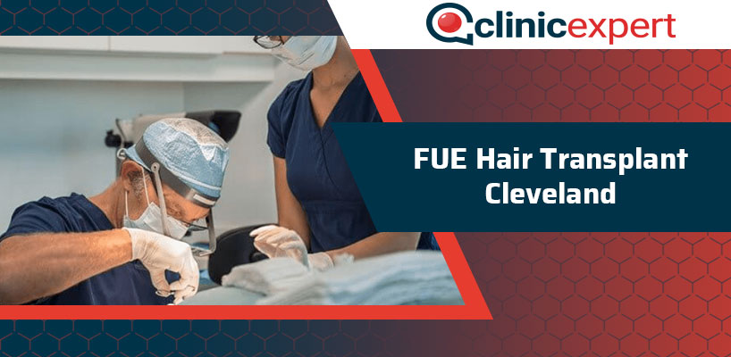 FUE Hair Transplant Cleveland