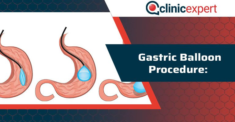 Gastric Balloon Procedure