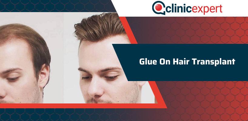 Glue On Hair Transplant
