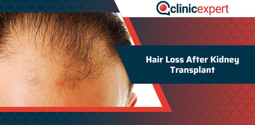 Hair Loss After Kidney Transplant