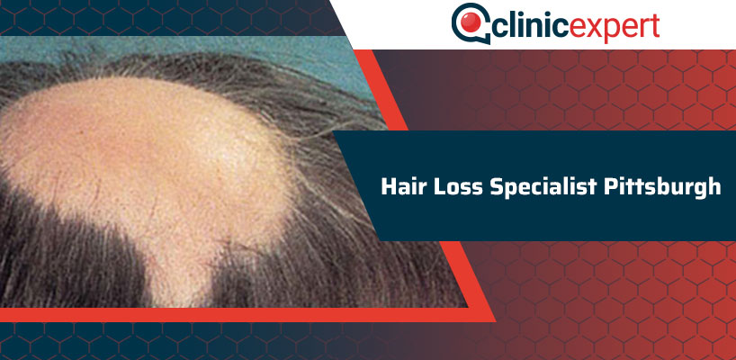 Hair Loss Specialist Pittsburgh