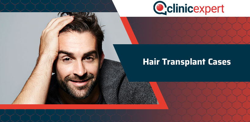 Hair Transplant Cases